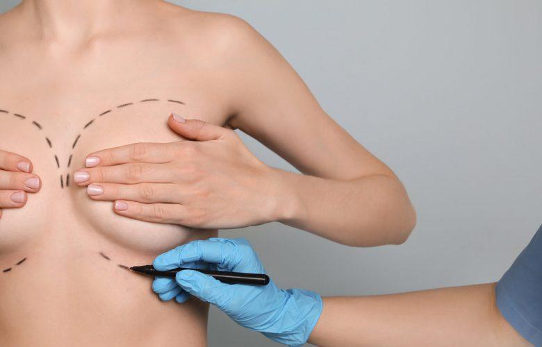 breast augmentation financing