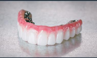 laser-dental-implants-cost
